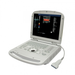 Portable Color Dopler Ultrasound Scanner YSD516