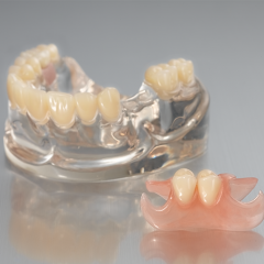 removable-one side flexible denture