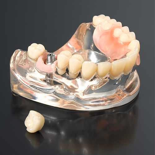 porcelain fused to metal implant crown cemented retainer