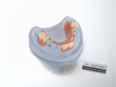 removable-upper acrylic partial denture
