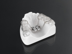 rapid palatal expansion with occlusal splint