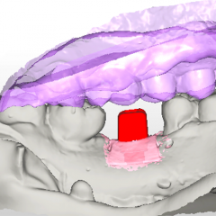 digital design of custom implant abutment