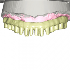 digital desigan of custom implant bridge