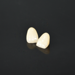 CAD-CAM zirconia fused to porcelain crown