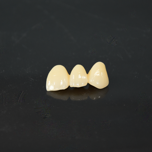 CAD-CAM zirconia fused to porcelain bridge