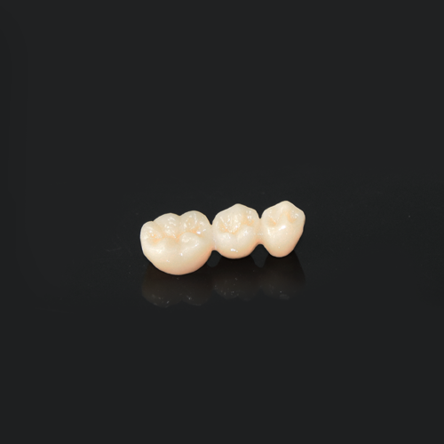 CAD-CAM zirconia full contour bridge