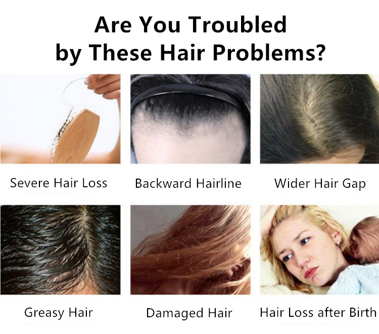 Are you troubled by these hair problems?