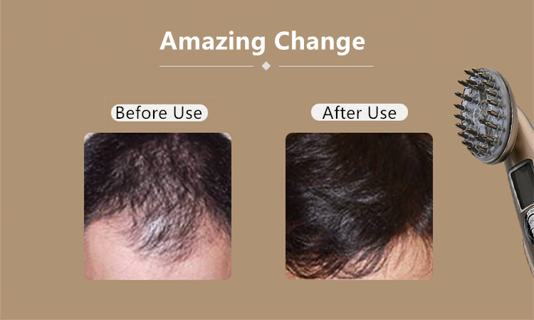 Amazing Change after the Use of RF Laser Hair Regrowth Comb