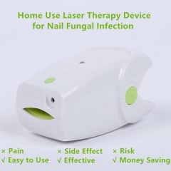 Nail Cleaning Laser Device for Painless Fungus Removal at Home