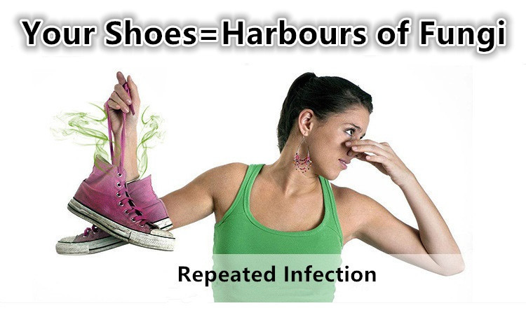 Your shoes have become the harbours of fungi.