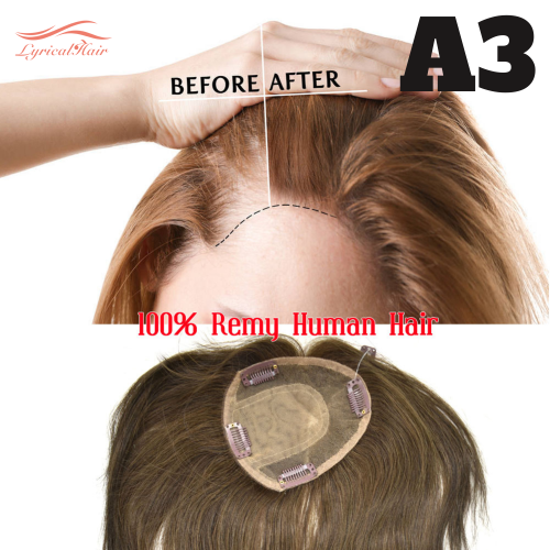 Top Quality 100% Human Hair Topper Straight Closure Hairpiece Middle Part Clip In On hair Toppers For Hair Loss Thinning Hair